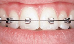 Speed Braces, Scranton Orthodontics